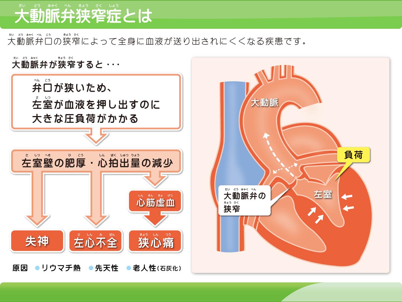 画像:弁膜症